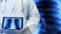 control de hipertension arterial pulmonar