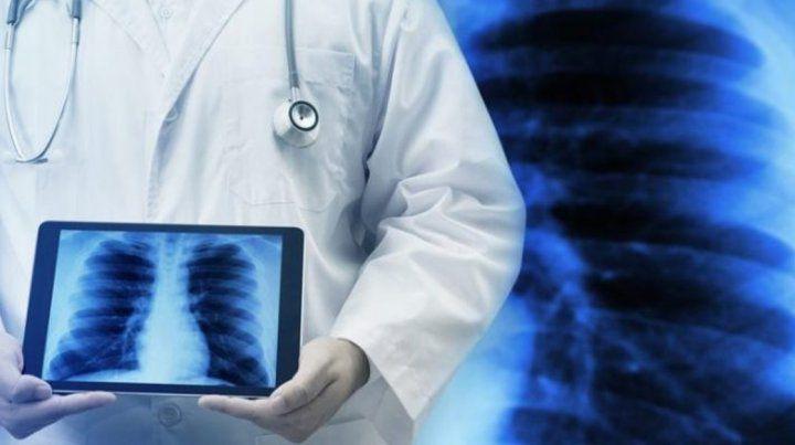 Control de hipertensión arterial pulmonar