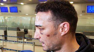 Scaloni regresó al país y habló del accidente que sufrió en España