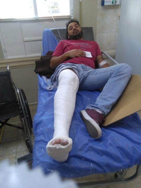 Fracturado. El policía Emanuel Romero Alves fue colisionado por los delincuentes.