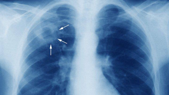 Un joven de 18 años y una mujer de 38 murieron de tuberculosis