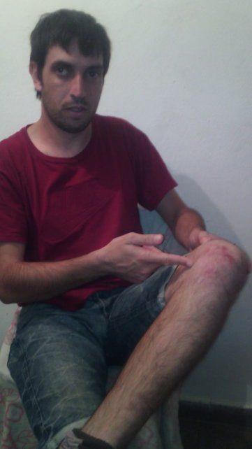 Aclaraciones sobre el incidente en el cual fue agredido un dirigente peronista