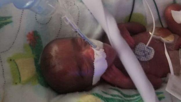 La pequeña pesó 245 gramos y midió 23 centímetro al nacer.