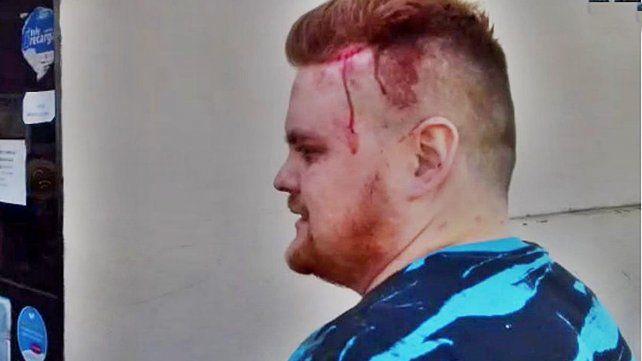 lesión. El joven terminó con heridas en la cabeza producto de los culatazos que le pegó el ladrón.