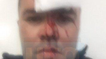 Internado. Uno de los policías debió ser internado. Le rompieron un vaso en la cabeza.