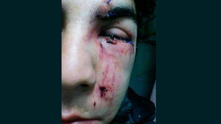 Denuncian otro caso de apremios ilegales a un joven en la calle
