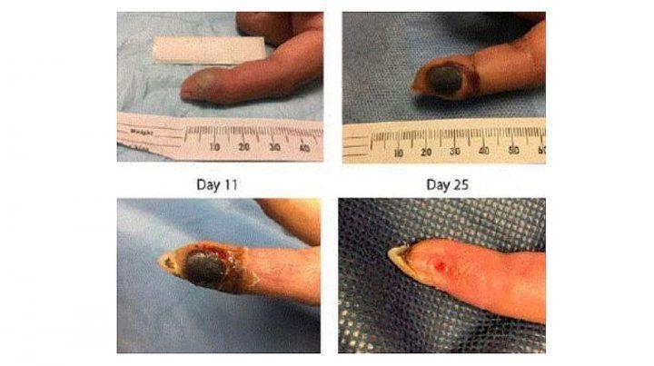 Se inyectó en el dedo un virus genéticamente modificado